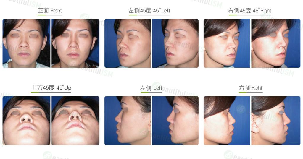 马鞍鼻矫正+韩式隆鼻(女)效果图,案例前后对比照片