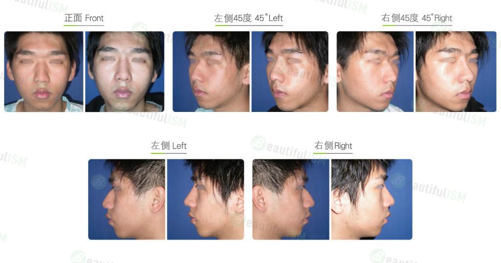 驼峰鼻整形(男)效果图,案例前后对比照片