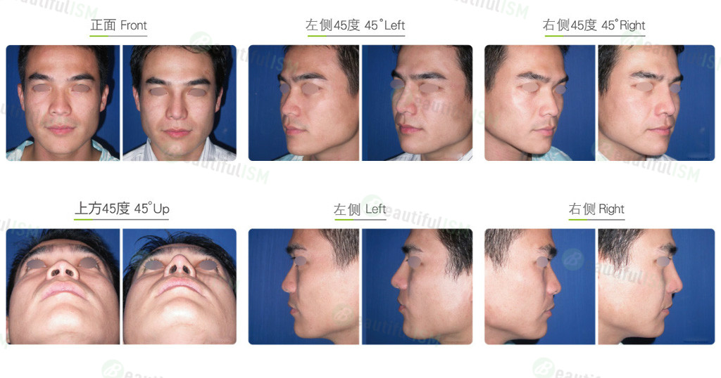 眉心垫高+三段式隆鼻(男)效果图,案例前后对比照片
