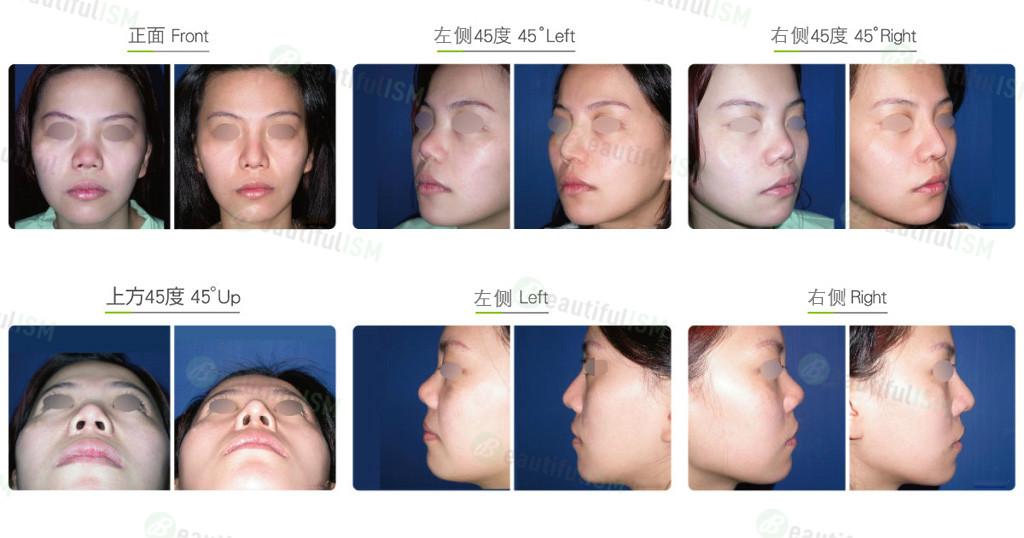 自体肋软骨隆鼻(女)效果图,案例前后对比照片