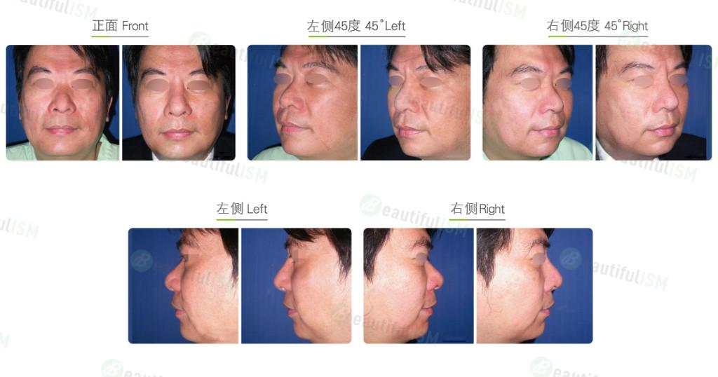 自体肋软骨隆鼻手术( 男)效果图,案例前后对比照片