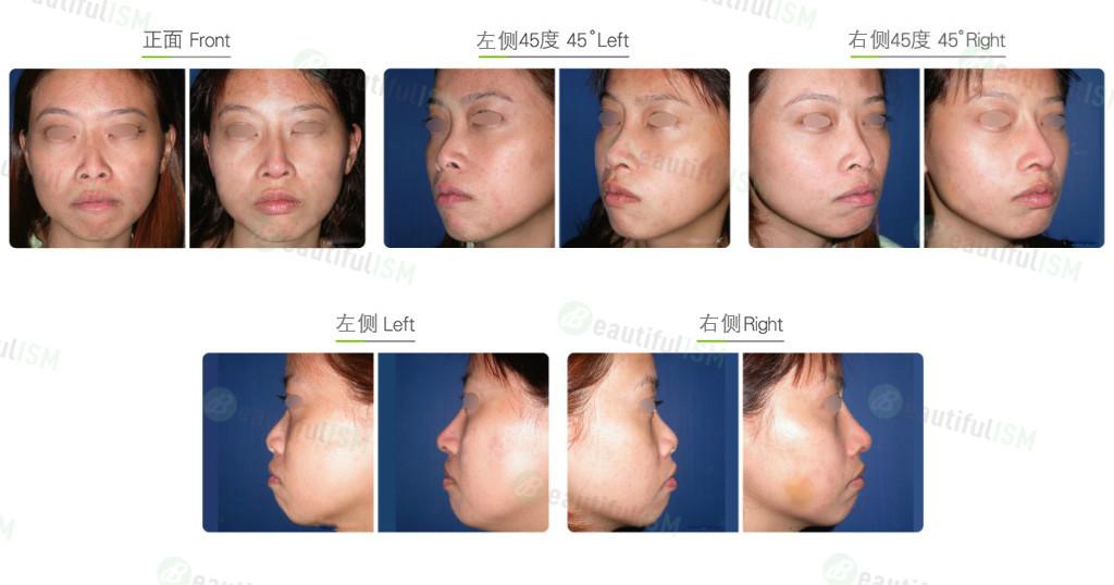 韩式隆鼻+鼻肉增厚(女)效果图,案例前后对比照片