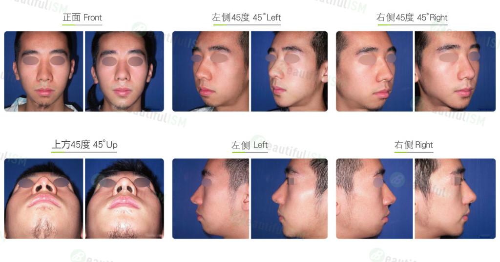 韩式隆鼻修复+鼻肉增厚(男)效果图,案例前后对比照片