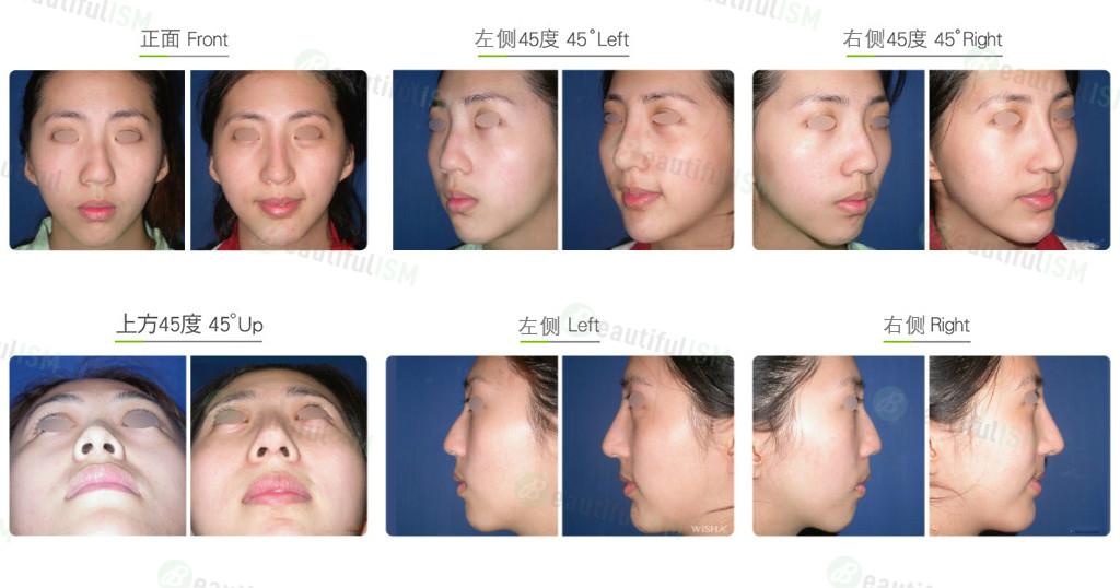 鼻部综合整形(女)效果图,案例前后对比照片
