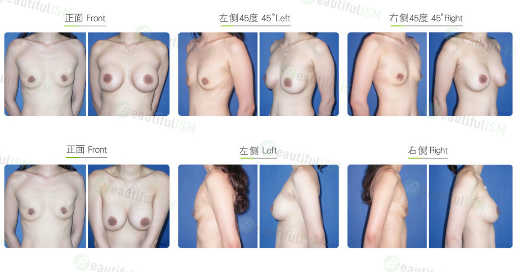 胸肌下假体隆胸效果图,案例前后对比照片