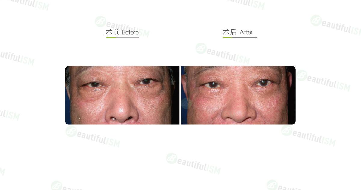 外切去眼袋(男)效果图,案例前后对比照片