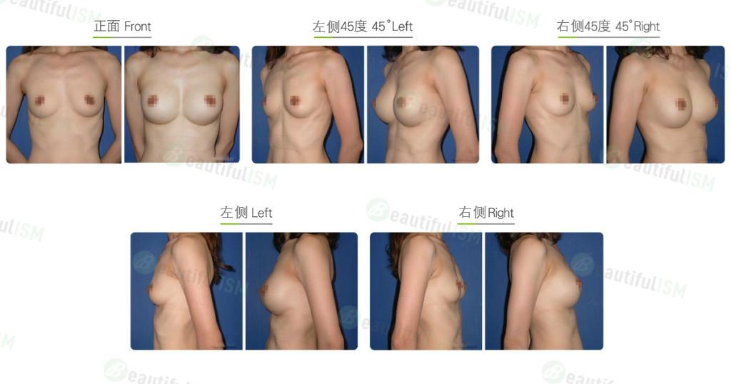 夹层式假体隆胸效果图,案例前后对比照片