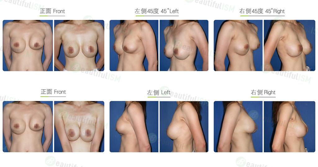 水滴形义乳隆胸效果图,案例前后对比照片