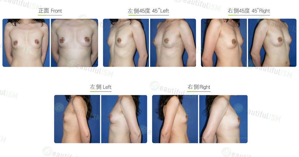 一般自体脂肪隆胸效果图,案例前后对比照片