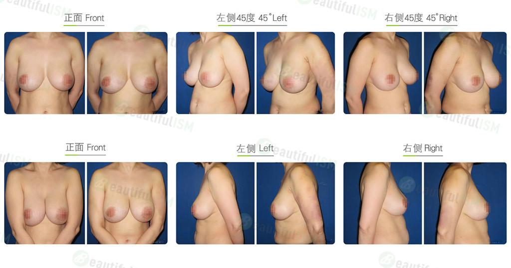 自体脂肪隆胸后矫正效果图,案例前后对比照片