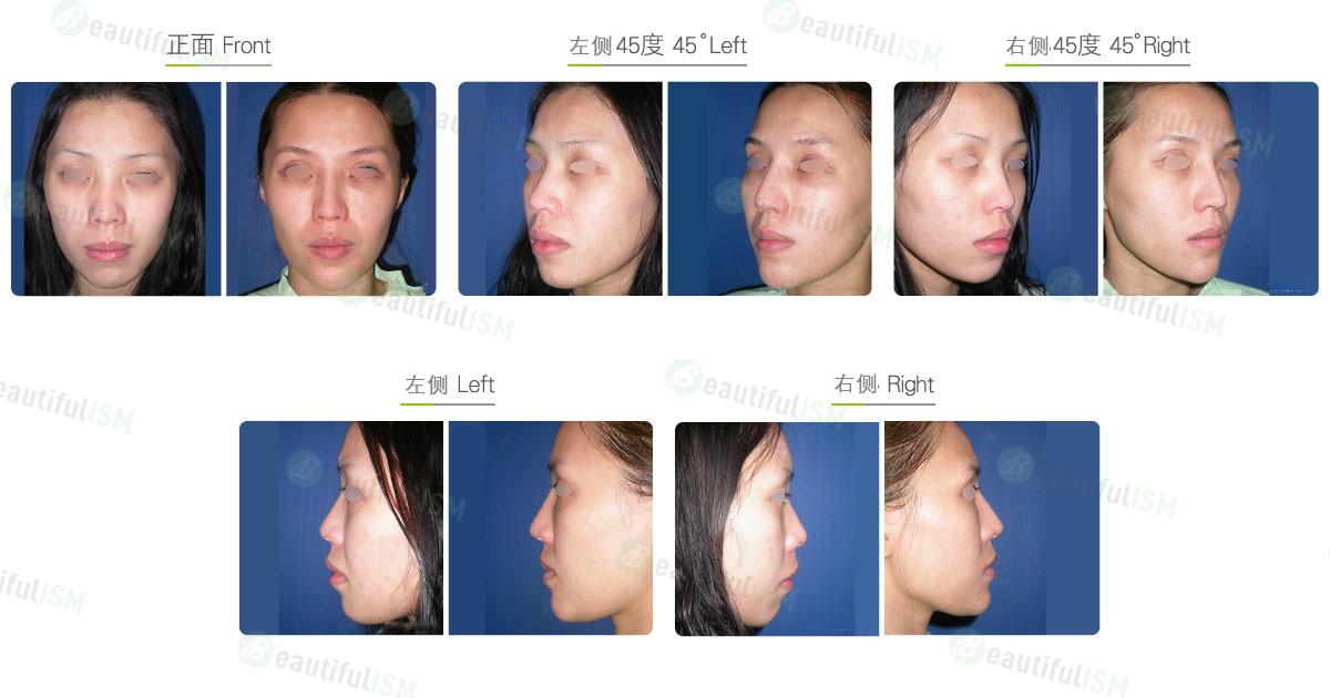垫下巴+卡麦拉假体植入(女)效果图,案例前后对比照片