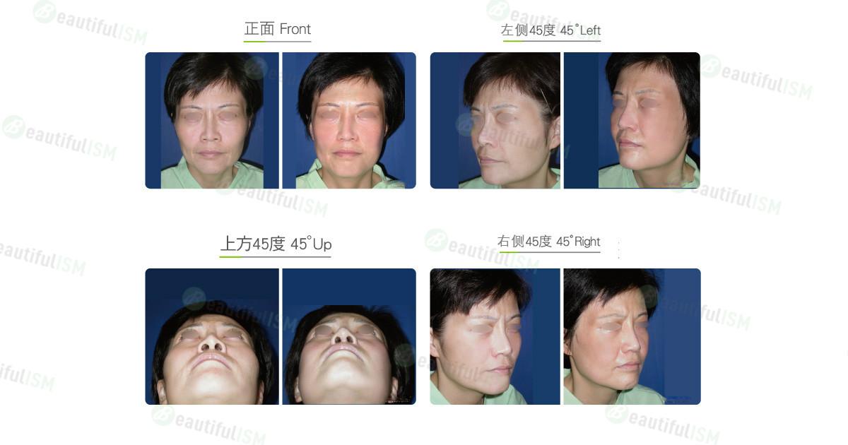 颧骨整形-颧骨体缩减(女)效果图,案例前后对比照片