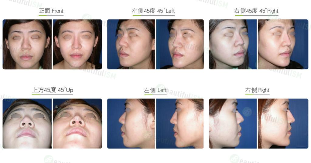韩式隆鼻(女)效果图,案例前后对比照片