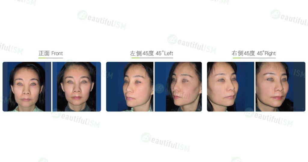 颞额中脸筋膜提升(女)效果图,案例前后对比照片