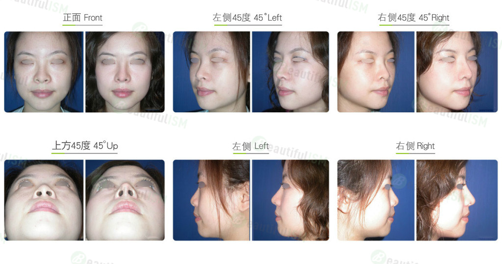 韩式隆鼻+鼻翼缩小(女)效果图,案例前后对比照片