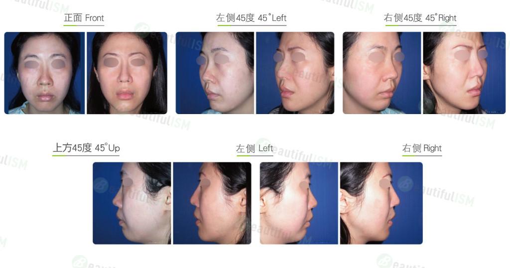 韩式隆鼻修复+鼻翼缩小(女)效果图,案例前后对比照片
