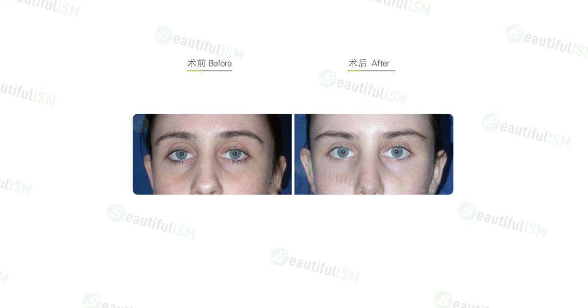 透明质酸注射矫正眼窝凹陷(女)效果图,案例前后对比照片