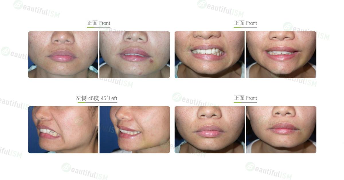 嘴唇功能性矫正(女)效果图,案例前后对比照片