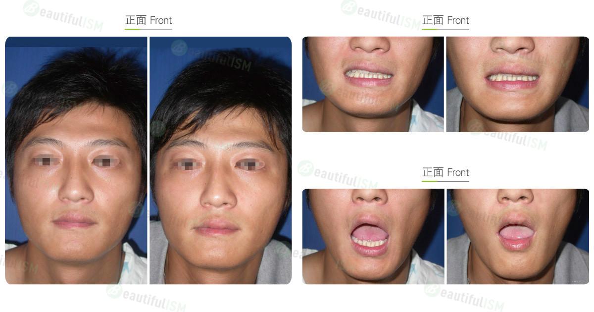 嘴唇功能性矫正(男)效果图,案例前后对比照片