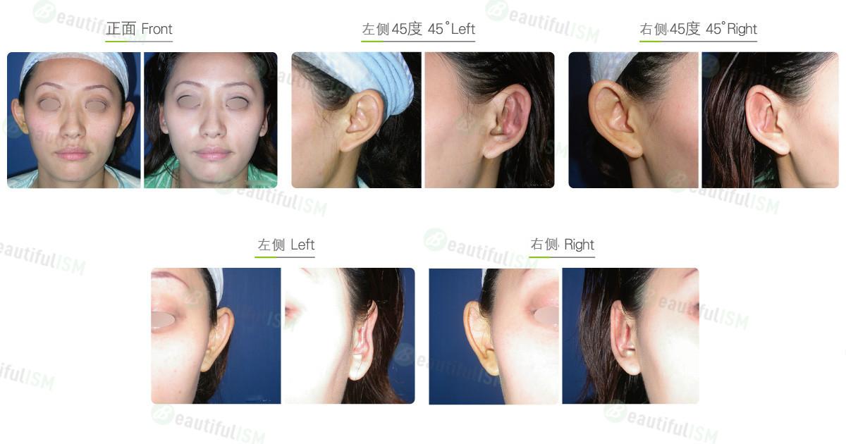 招风耳整形(女)效果图,案例前后对比照片