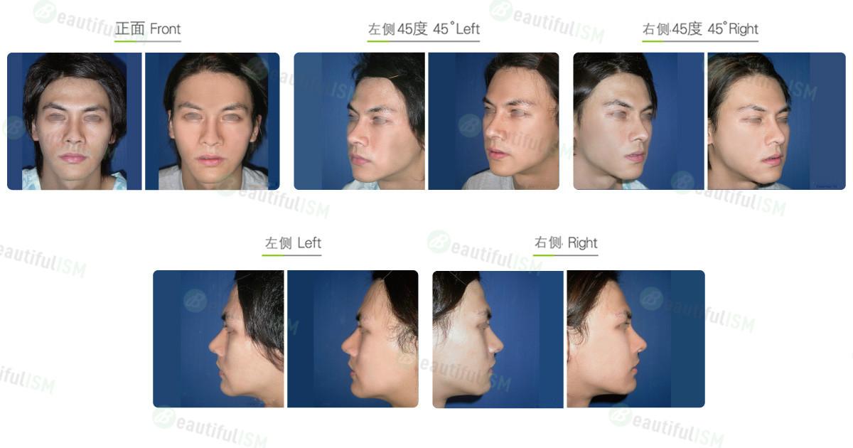 磨眉骨(男)效果图,案例前后对比照片