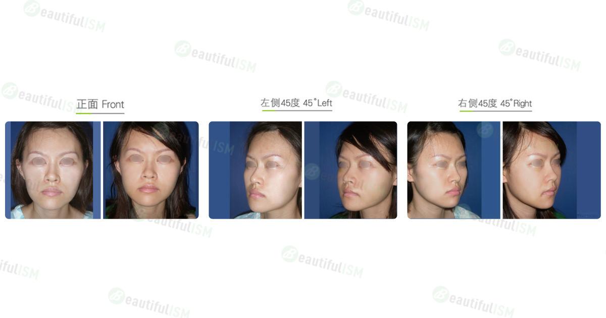 颧骨整形-颧骨体缩减+术后一周(女)效果图,案例前后对比照片