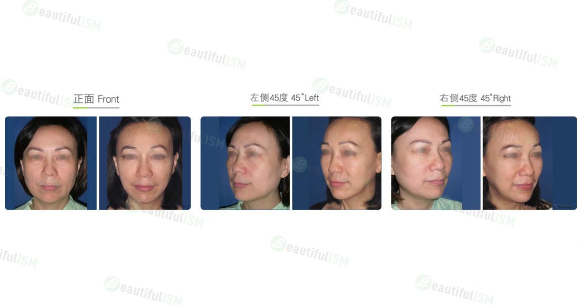 下颌骨整形-下颌骨削骨+中脸紧致拉皮(女)效果图,案例前后对比照片
