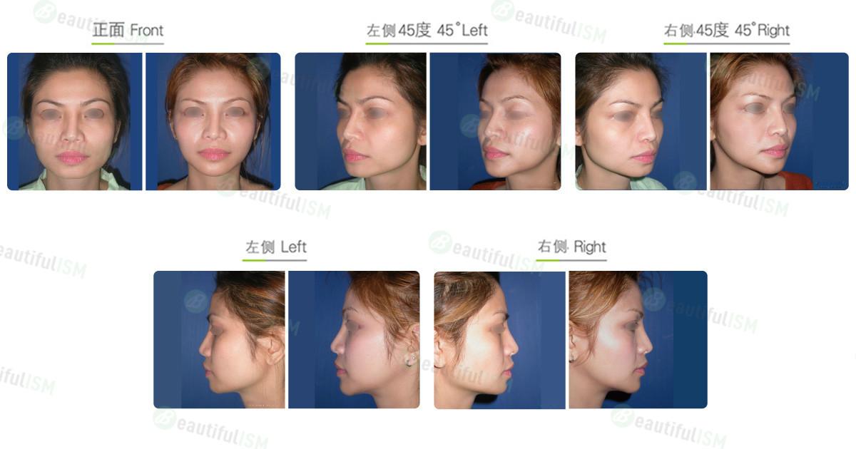 下颌骨整形-下颌骨角削骨+垫下巴(女)效果图,案例前后对比照片