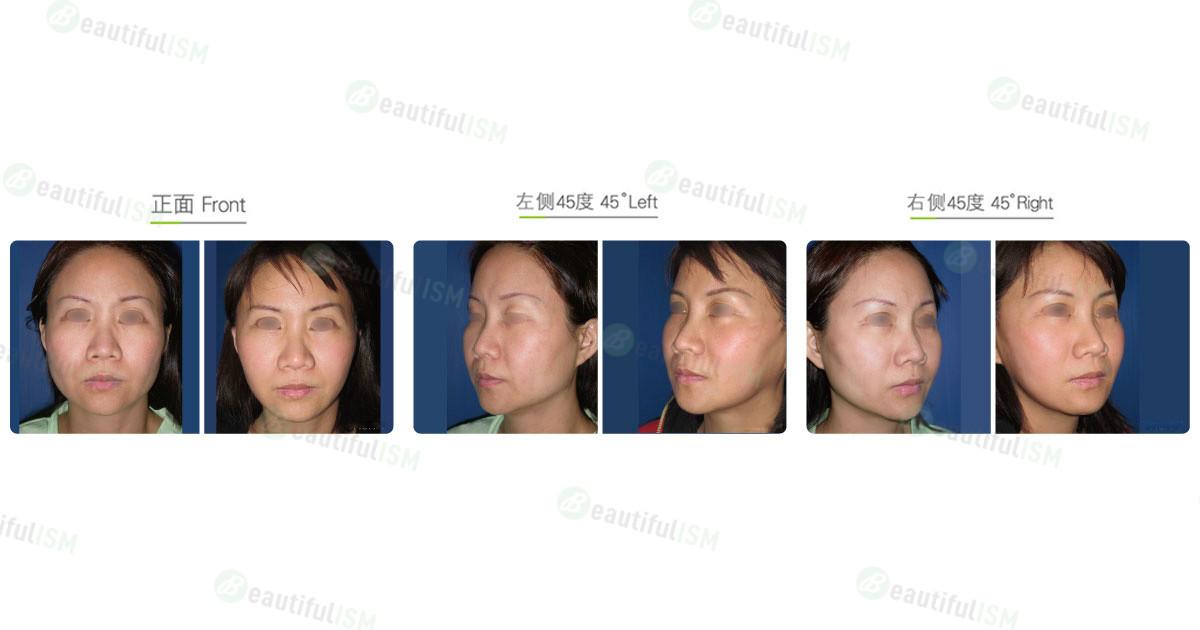 下颌骨整形-下颌骨角合并下颌骨体削骨+中脸紧致拉皮(女)效果图,案例前后对比照片