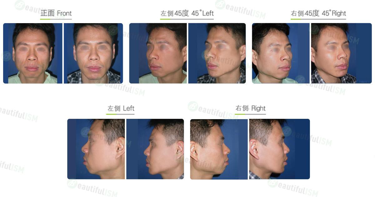 下颌骨整形-下颌骨角合并下颌骨体削骨+垫下巴(男)效果图,案例前后对比照片