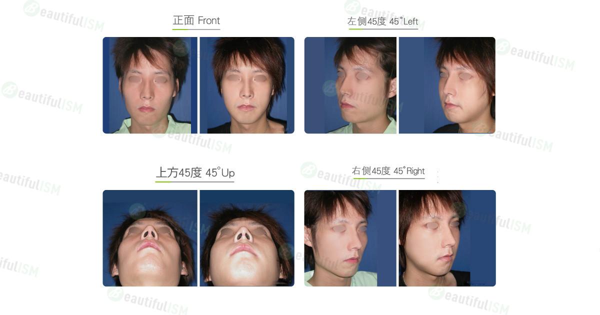 国字脸整形-(男)效果图,案例前后对比照片