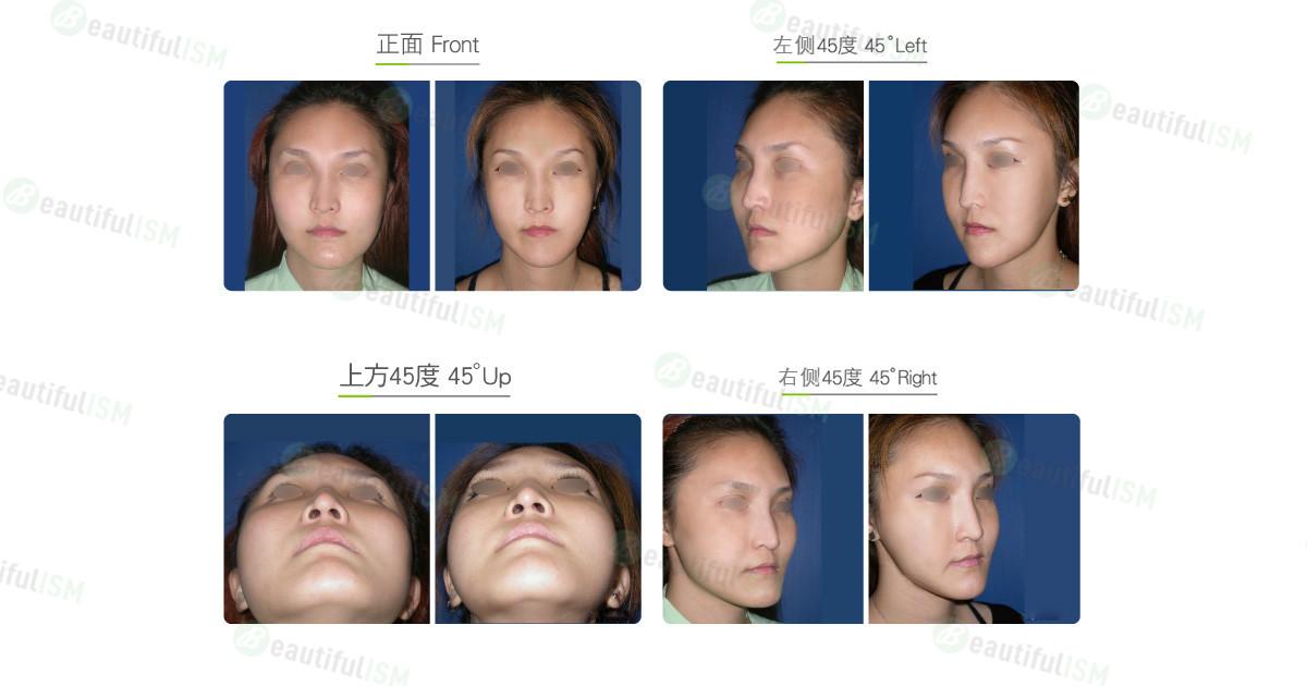 国字脸整形-不对称脸整形(女)效果图,案例前后对比照片