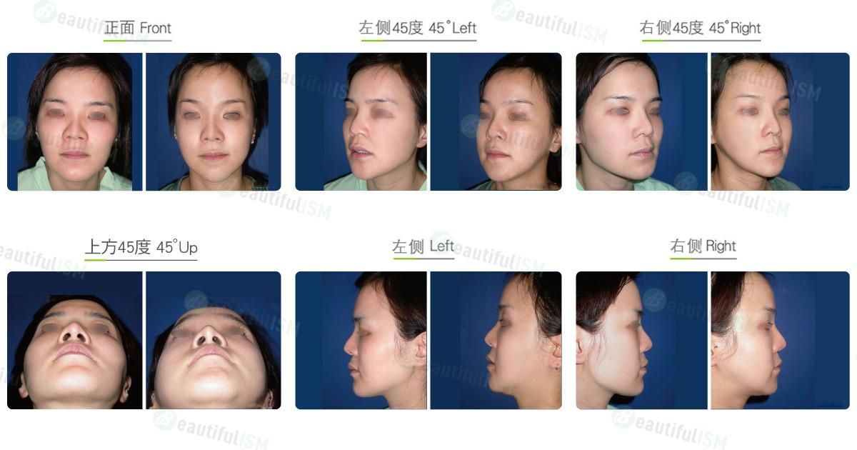 国字脸整形+下巴截骨整形(女)效果图,案例前后对比照片