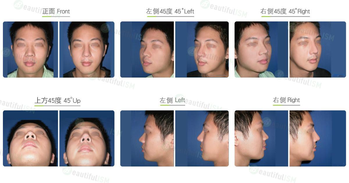 国字脸整形+垫下巴(男)效果图,案例前后对比照片