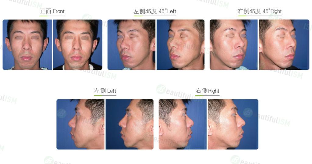 韩式隆鼻+鼻翼缩小(男)效果图,案例前后对比照片