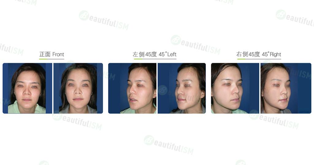 内窥镜额头提拉-术后一周(女)效果图,案例前后对比照片