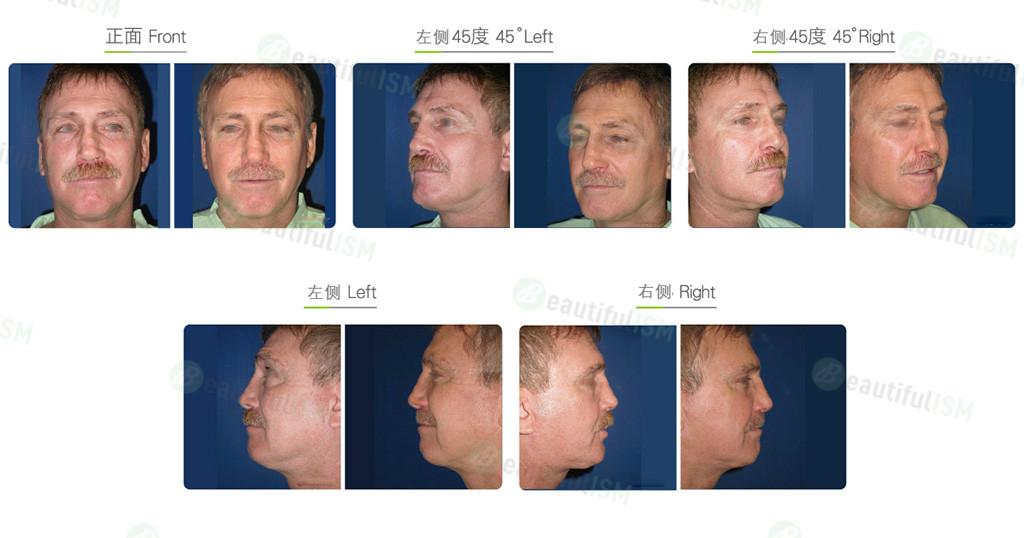 下巴拉皮+中下脸筋膜悬吊(男)效果图,案例前后对比照片