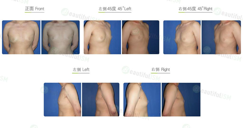 男性女乳症矫正-乳房抽脂效果图,案例前后对比照片