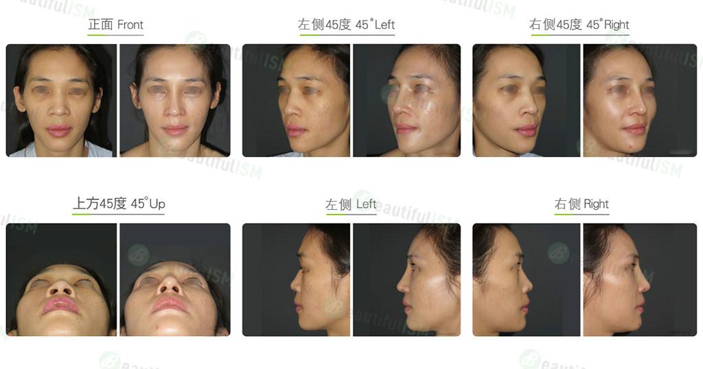 韩式隆鼻+鼻骨缩减+三段式隆鼻(女)效果图,案例前后对比照片