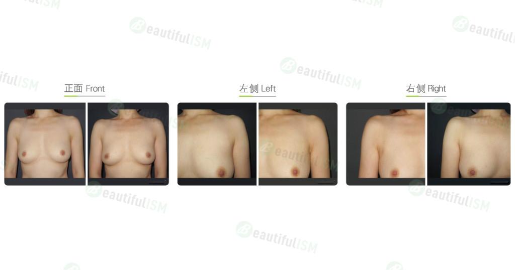 副乳吸脂(女)效果图,案例前后对比照片