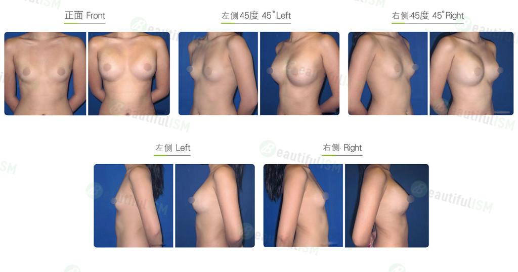 自体脂肪移植-丰胸效果图,案例前后对比照片