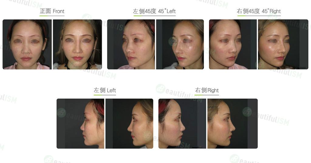 韩式隆鼻+鼻骨缩减+鼻翼缩小+三段式隆鼻(女)效果图,案例前后对比照片