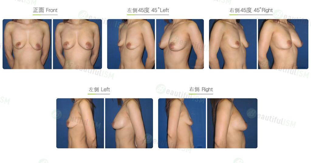 自体脂肪移植-丰胸+乳房下垂整形效果图,案例前后对比照片