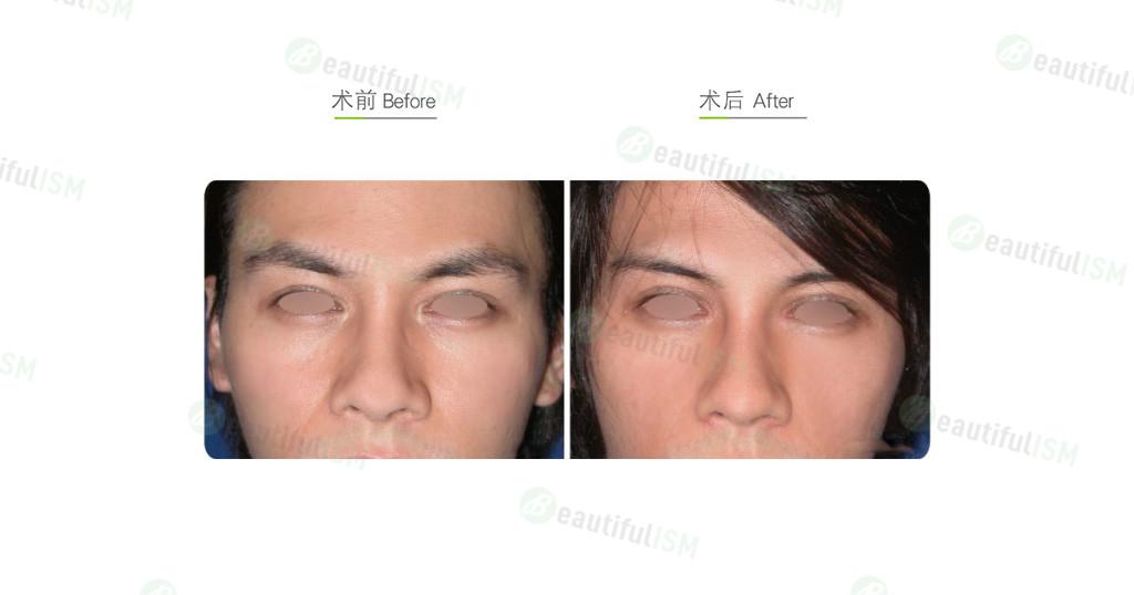 自体脂肪移植-脂肪填补眼窝凹陷(男)效果图,案例前后对比照片
