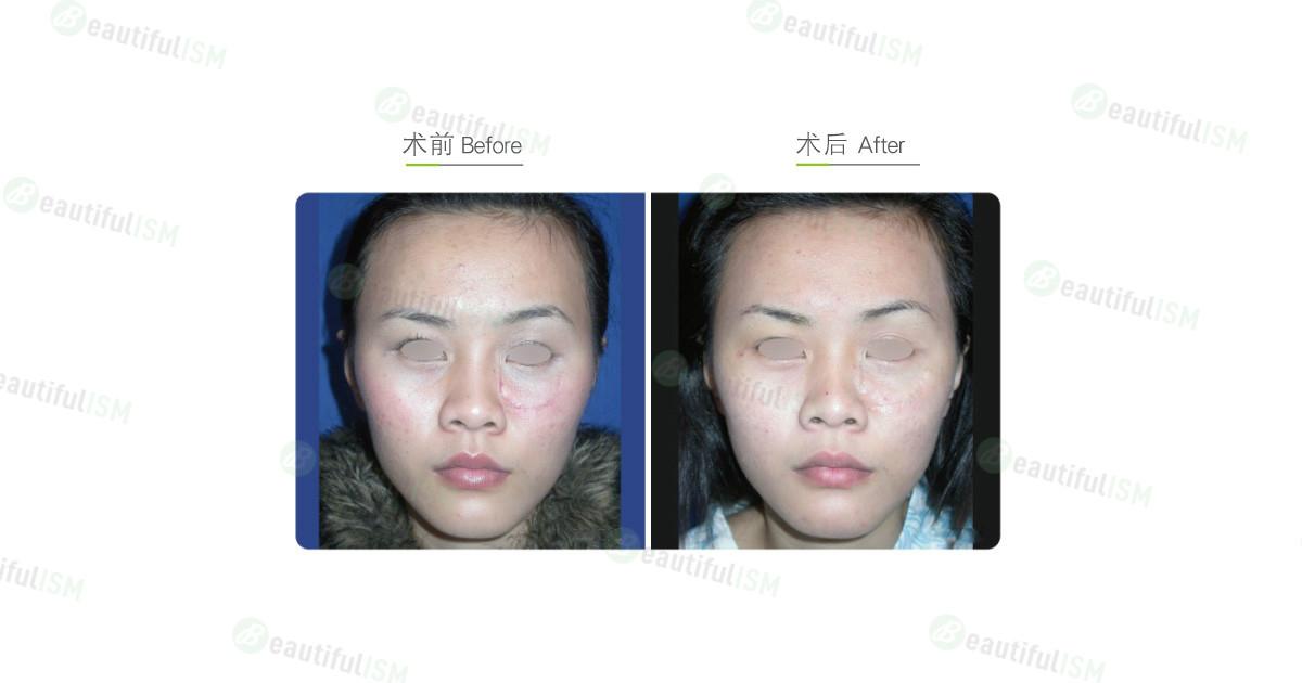 疤痕修复-脸部疤痕切除(女)效果图,案例前后对比照片