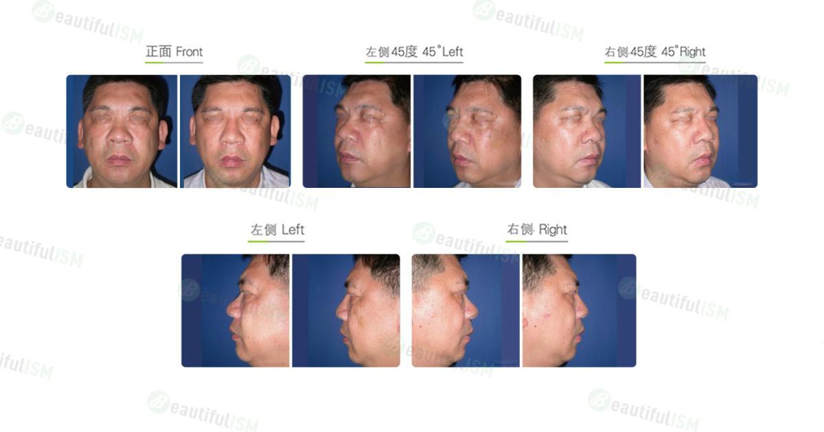 微晶瓷注射-隆鼻(男)效果图,案例前后对比照片