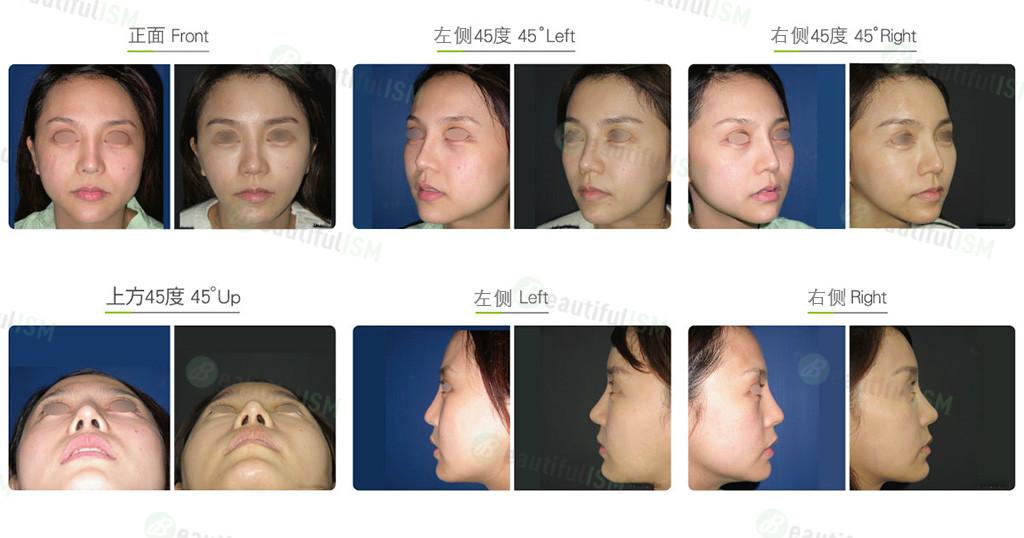 韩式隆鼻+鼻骨缩减+补鼻孔(女)效果图,案例前后对比照片