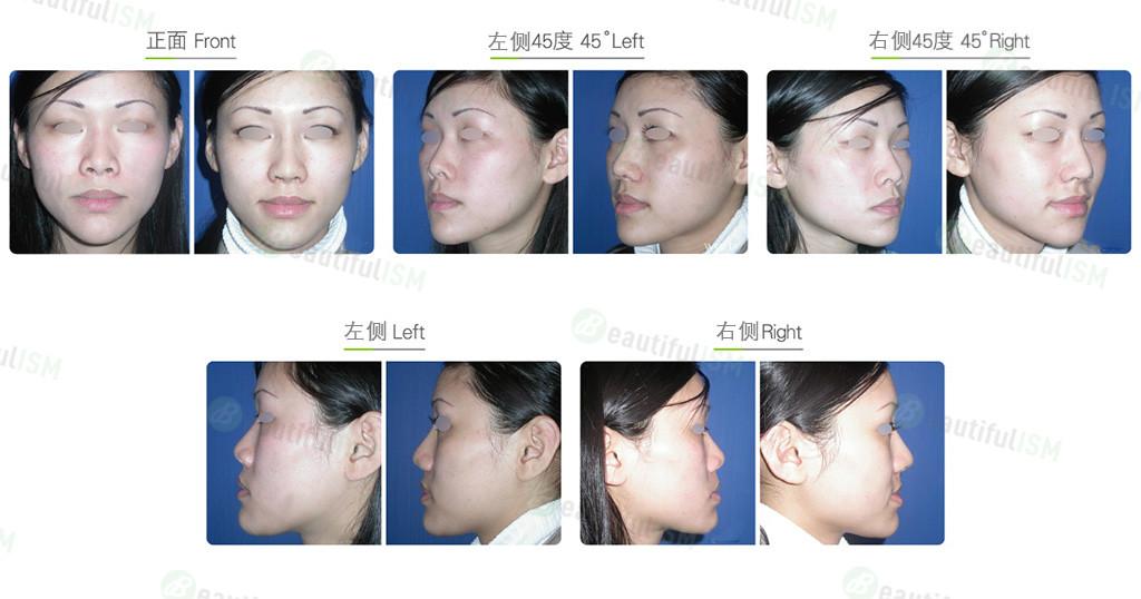 韩式隆鼻+补鼻孔(女)效果图,案例前后对比照片