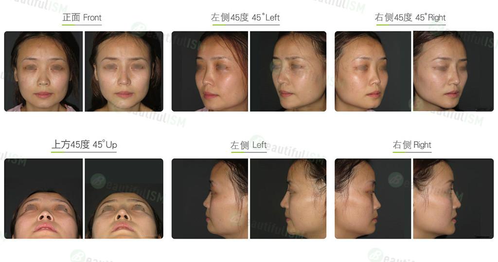 韩式隆鼻+臀筋膜补鼻头(女)效果图,案例前后对比照片
