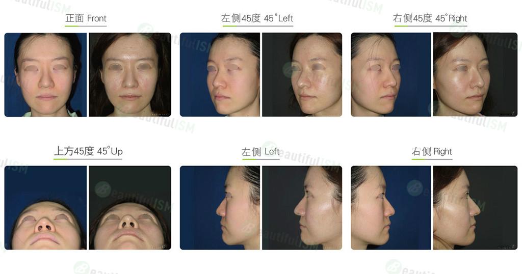 韩式鼻雕+鼻翼缩小(女)案例效果图,手术前后对比照片